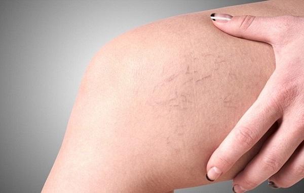 15 Phút sử dụng ghế massage để phòng ngừa suy giãn tĩnh mạch
